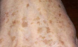 bruna fläckar på huden hos äldre